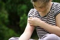 Hoe ga ik muggenbultenjeuk tegen